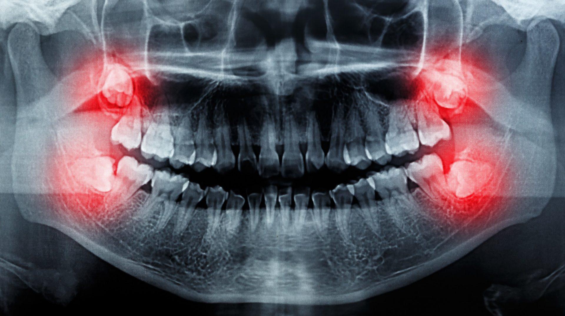 Wiesheitszähne auf einer Panoramaröntgenaufnahme