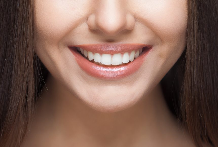 Teeth whitening but in a smart way
