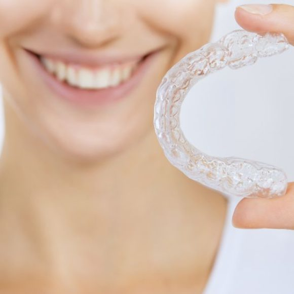 INVISALIGN –  the invisible braces
